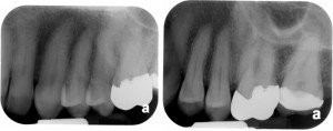 radiografia_periapical